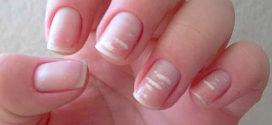 Как избавиться от белых пятен на ногтях