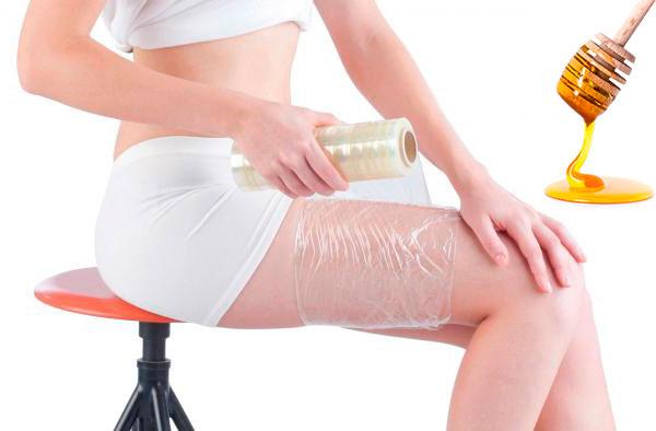 Реально ли избавиться от целлюлита в домашних условиях?