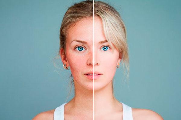 5 продуктов, разрушительно воздействующих на кожу
