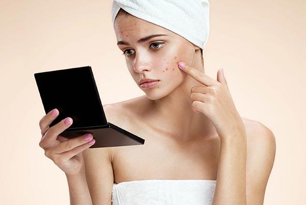 Проблемная кожа: способы лечения