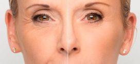 Эффективные омолаживающие косметологические процедуры