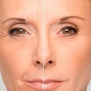 омолаживающие косметологические процедуры