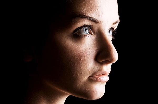 Прыщи перед месячными: борьба за здоровую кожу