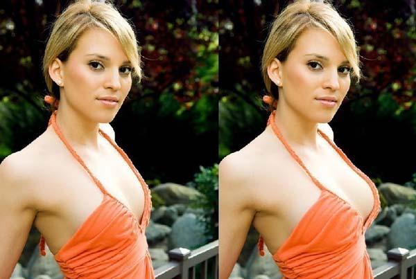 Коррекция грудных желез с имплантами