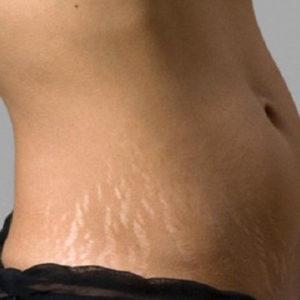Почему появляются растяжки на коже и как с ними бороться
